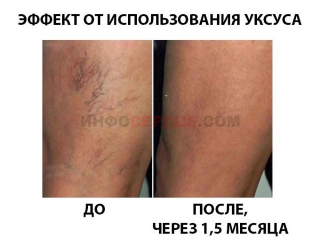 Яблочный уксус при варикозе ног: как пользоваться, отзывы