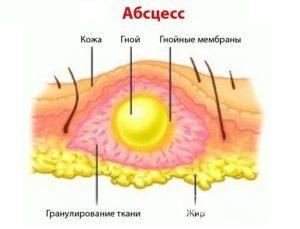 Переливание венозной крови внутримышечно: зачем проводят процедуру