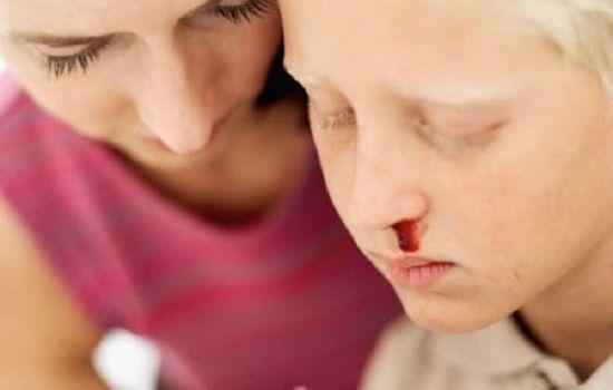 Рак крови у женщин: симптомы заболевания на разных стадиях, диагностика и методы терапии лейкоза