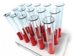 ИФА (иммуноферментный анализ крови): особенности диагностики, способы исследования и расшифровка результатов
