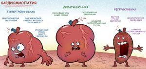 Кардиомиопатия: причины поражения сердца, симптомы и виды патологии, методы диагностики и лечения