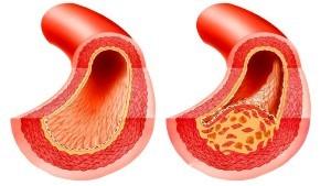 Красный клевер: лечебные свойства от холестерина, настойка для сосудов