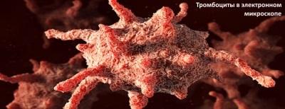 Тромбоциты понижены у взрослого или у ребенка: о чем это говорит, причины, лечение
