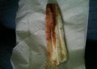 Имплантационное кровотечение: почему возникает, как распознать симптомы и определить срок, лечение