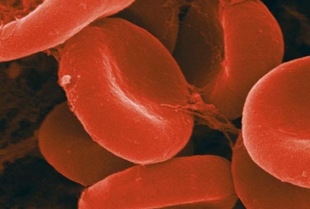 Свекла для поднятия гемоглобина в крови
