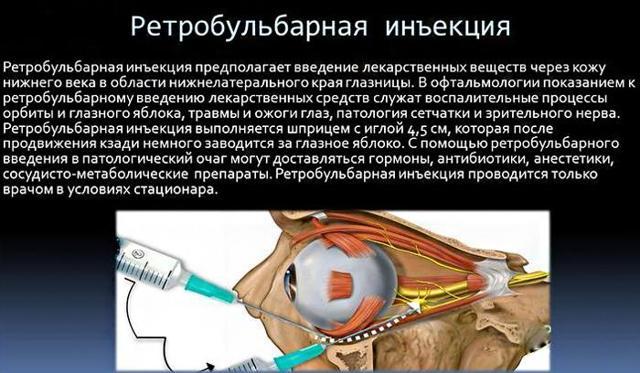 Парабульбарное введение: что это за процедура и как делается