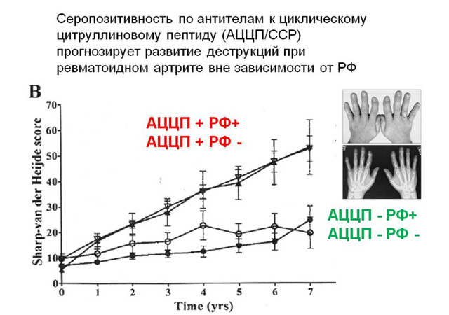 Анализ на ревмопробы: нормы в крови, что входит в исследование, расшифровка полученных данных