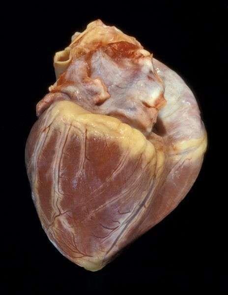 Где находится сердце у человека: с какой стороны располагается в норме и при патологиях