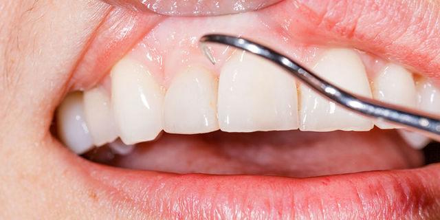 Кровоточат десны: что делать при появлении крови во время чистки зубов, причины патологии