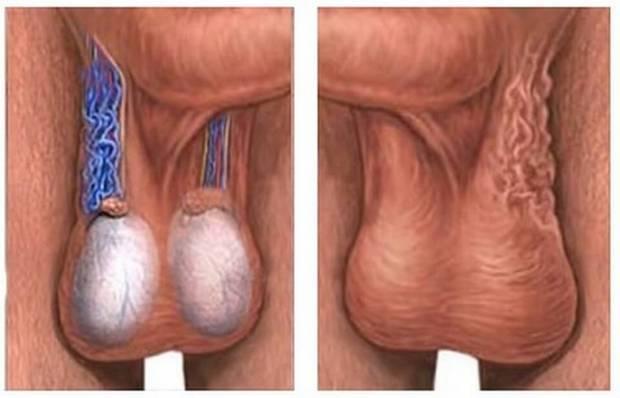 Операция при варикоцеле: что это такое, виды, показания, как проходит, осложнения и прогноз, фото до и после