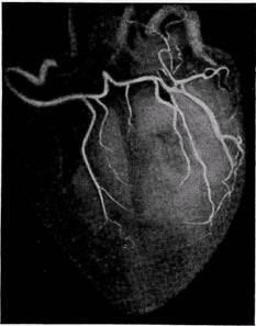 Кровоснабжение сердца: анатомия, схема, строение коронарной сети по сегментам узи