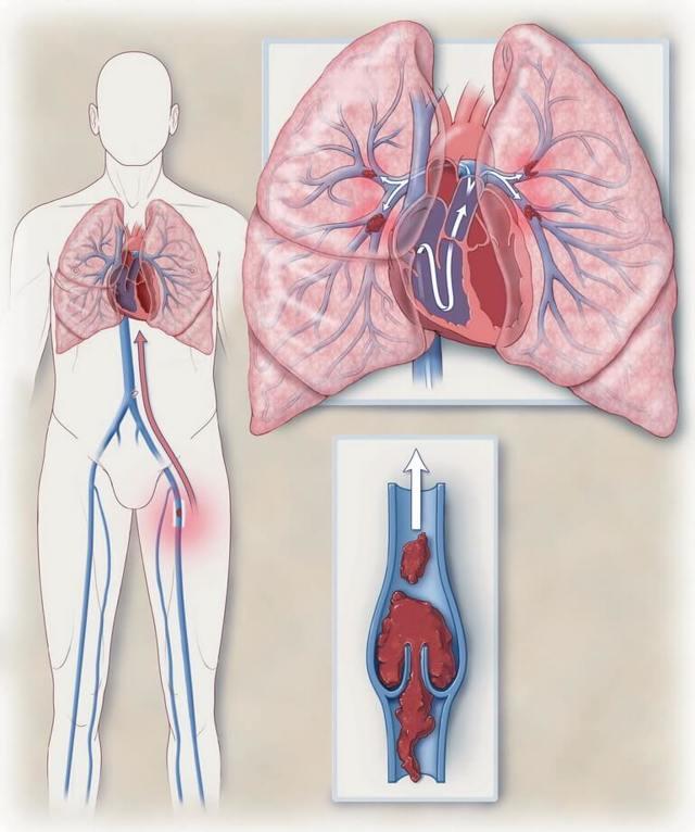 Фибрилляция предсердий: постоянная и пароксизмальная формы, причины, клиническая картина и лечение