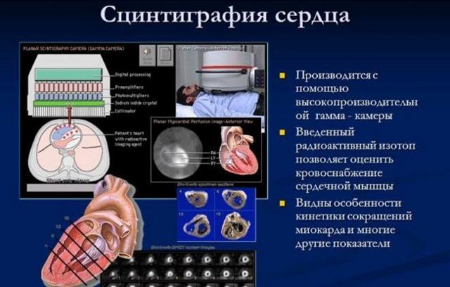 Дилатация левого предсердия: что это такое, причины появления, виды, степени, диагностика и лечение