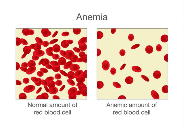 Железодефицитная анемия у детей: что это, причины, диагностика и лечение заболевания
