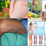 Диета для больных с тромбофлебитом и ее особенности