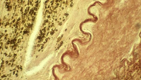 Почему кальций скапливается в сосудах и чем это опасно