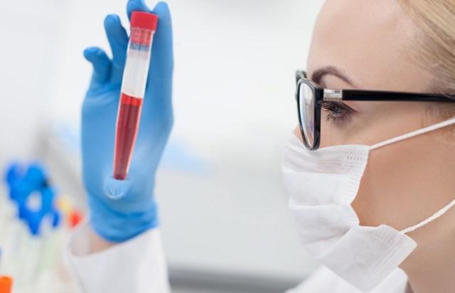 Анализ крови РПГА: что это такое, расшифровка, когда назначается исследование, подробности анализа