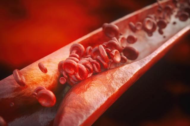 Липидограмма: норма у взрослых и детей, расшифровка анализа крови