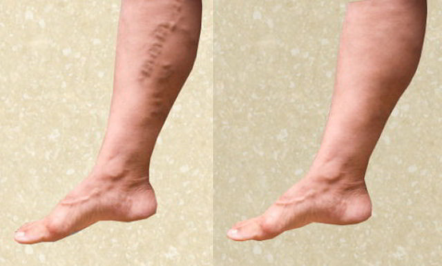 Шишки на венах ног у мужчин: что это такое, лечение народными средствами, фото