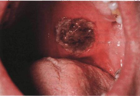Гранулематоз Вегенера: диагностика болезни, симптомы и методы лечения такой разновидности васкулита