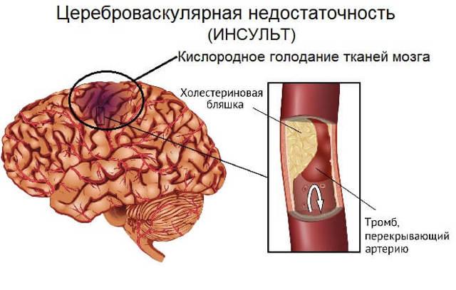 Цереброваскулярная болезнь (ЦВБ): классификация, симптомы и лечение патологии