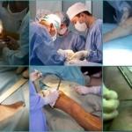 Венэктомия: что это такое, ход операции, послеоперационный период, отзывы, последствия
