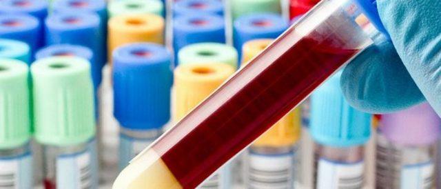 Анализ крови на сахар: расшифровка результатов после сдачи и показатели при заборе из вены и пальца