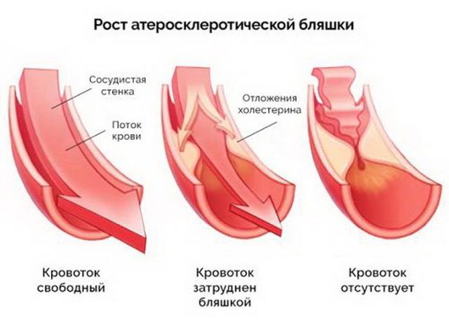 К чему приводит недостаток сна у человека, вызывает атеросклероз и болезнь артерий