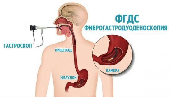 Слизистая желудка гиперемирована: что это такое, причины, симптомы, лечение
