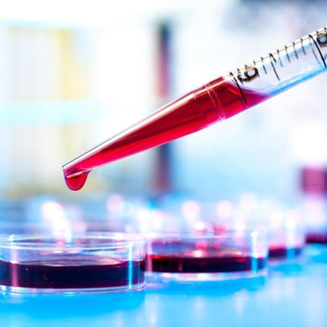Мочевая кислота: норма в организме мужчин и женщин, причины повышения