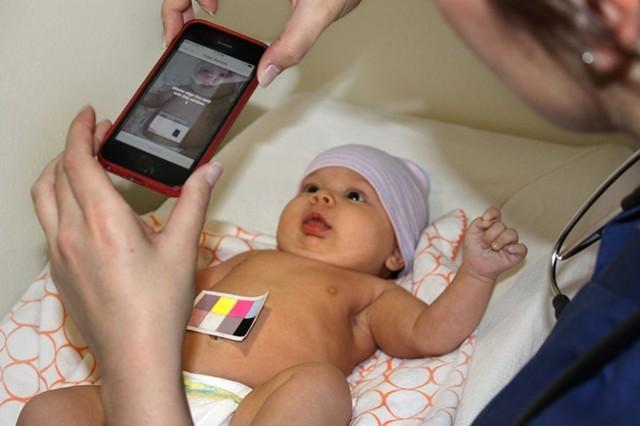 Норма билирубина у новорожденных: особенности показателя, причины возникновения у грудничков желтушки, лечение