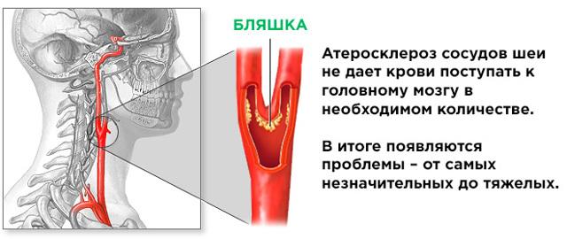 Бляшки в сосудах шейного отдела: как избавиться