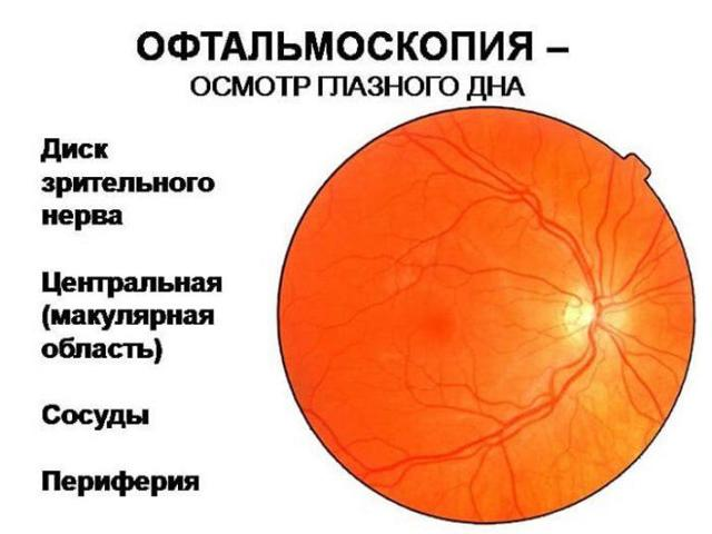 Ангиопатия сетчатки обоих глаз: что это такое, симптомы, лечение