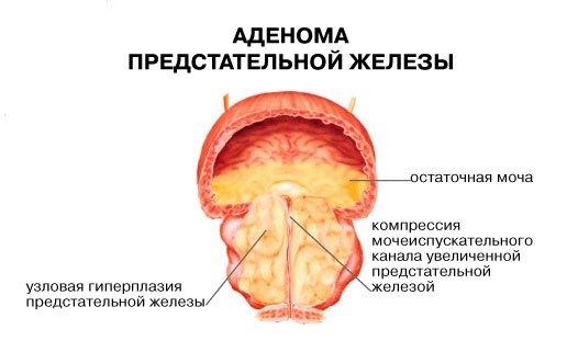 Анализ крови на psa: что это такое и каковы нормальные значения