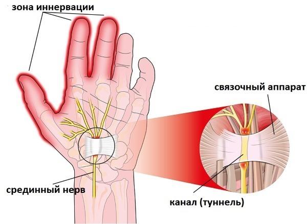 Онемение пальцев левой руки - мизинца, безымянного, среднего, указательного и большого: причины
