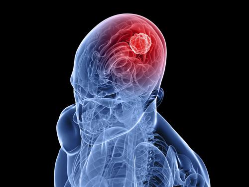 Ангиоспазм сосудов головного мозга: причины, симптомы, лечение