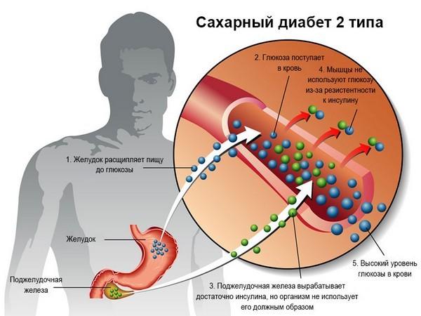 Сахарный диабет 2 типа: особенности, причины, симптомы, диагностика и лечение
