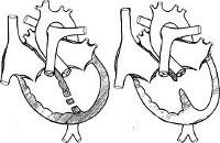 Дефект межжелудочковой перегородки (ДМЖП): причины, классификация, симптомы, диагностика и лечение