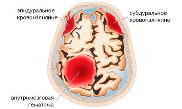 Кровоизлияние в мозг: причины, симптомы, последствия и методы лечения