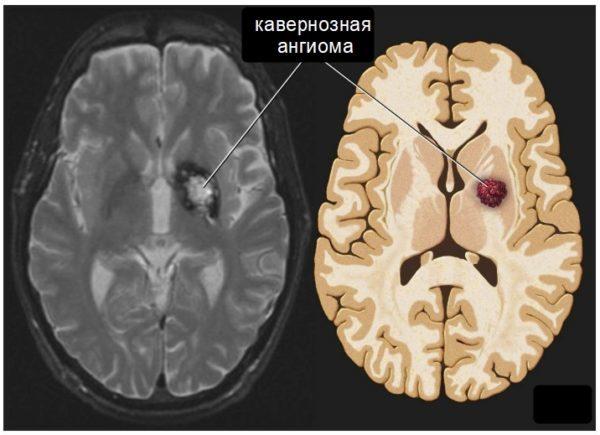 Ангиома головного мозга: что это такое, причины, лечение, удаление, прогноз жизни и последствия