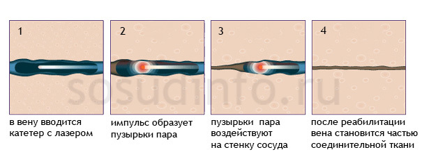 Флебэктомия: ход операции на венах нижних конечностей, классический метод по Нарату и современные варианты