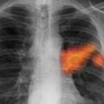Инфаркт легкого: что это такое, причины, симптомы, лечение, последствия, прогноз