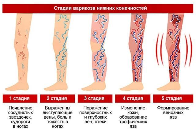 Варикозное расширение вен на ногах: лечение в домашних условиях