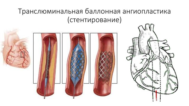 Ангиопластика сосудов (артерий) коронарных, нижних конечностей, сонных: что это такое, назначение