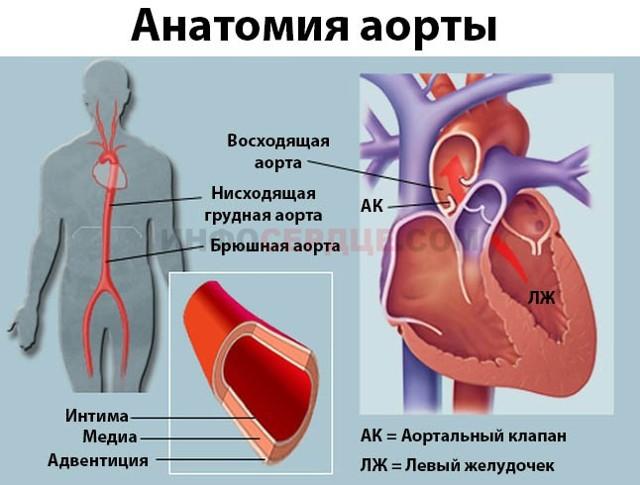 Причины уплотнения стенок аорты