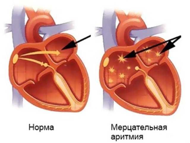 Аритмия сердца что это такое и как лечить симптомы