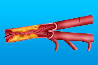 Стеноз сонных артерий: что это такое, симптомы, причины, диагностика, лечение, прогноз и профилактика
