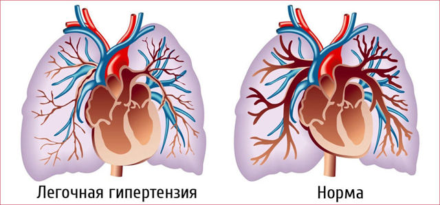 Легочная и артериальная гипертензия: основные отличия