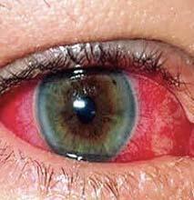 Увеит: причины возникновения и симптомы, вялотекущее и хроническое течение глазного заболевания, лечение