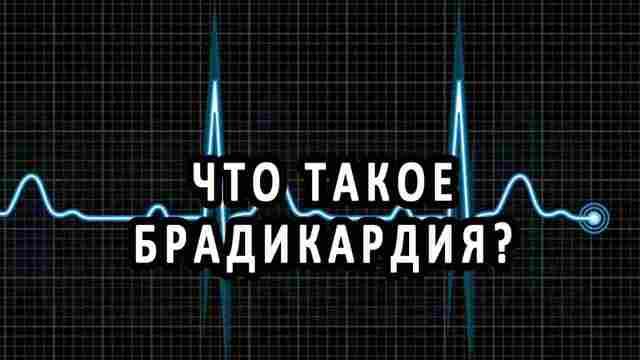 Брадикардия сердца: что это такое и как лечить, какие таблетки принимать и как лечить народными средствами